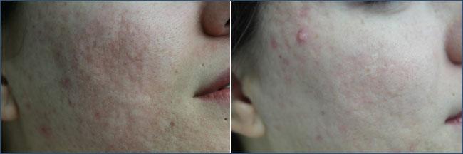 Acné:  Pre y Post a 1 solo tratamiento ablativo