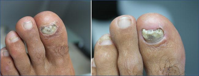 ONICOMICOSIS: Pre y Post tratamiento de la Onicomicosis
