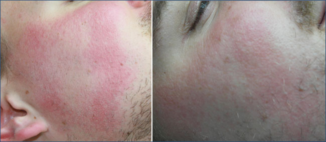 ROSÁCEA:  pre y post a 3 tratamientos
